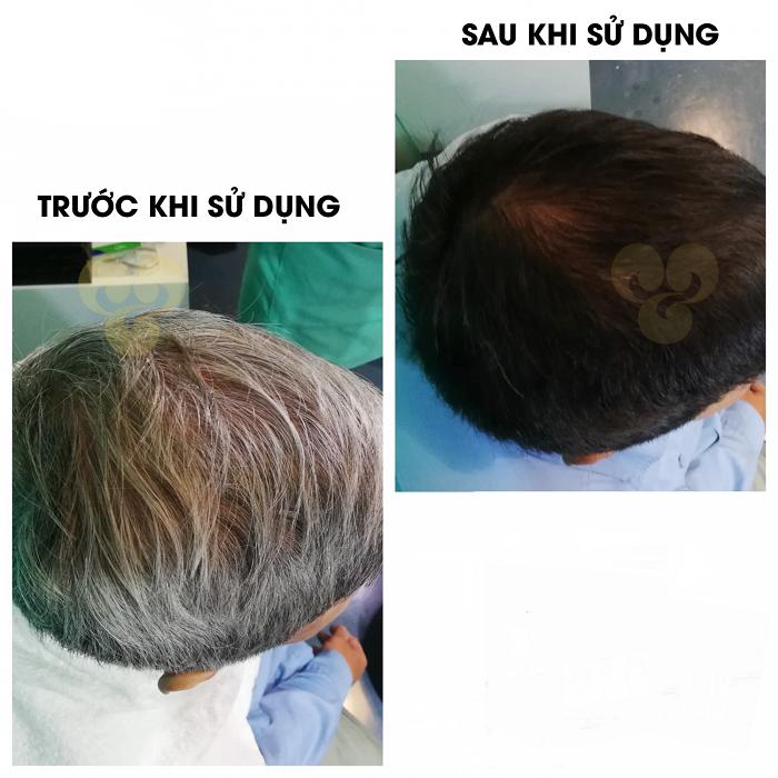 Hiệu quả khi dùng Tinh bột lá nhuộm tóc phủ bạc YBOME an toàn